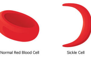 Art and the scourge of Sickle Cell Disease